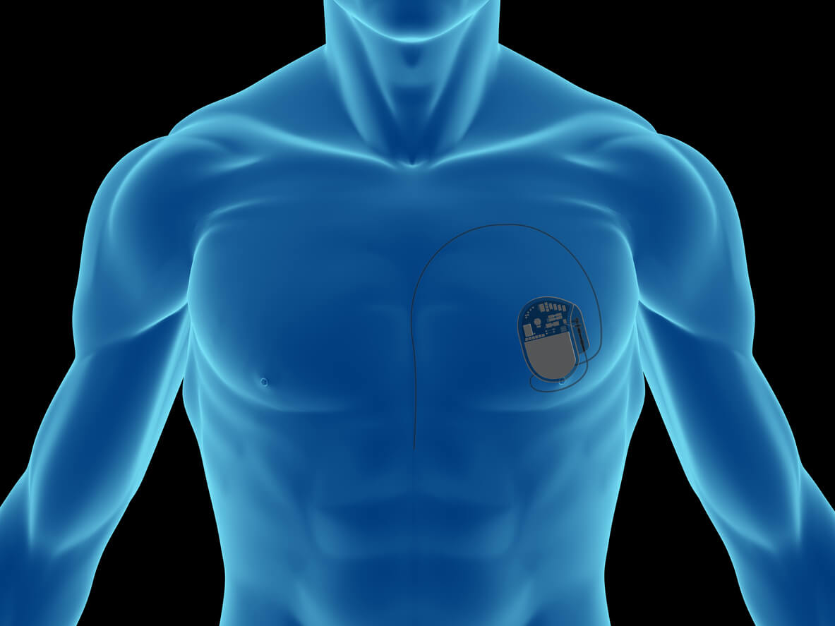 My Spouse's Pacemaker Is Not Working — What Can I Do?